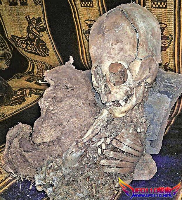 秘鲁‧三角形头骨‧眼窝特大‧发现外星人遗骸