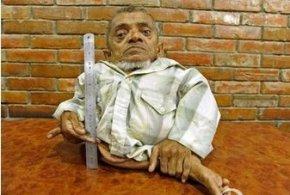 世界上最矮的人图片