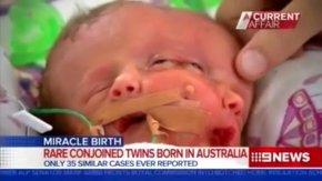 澳洲一对夫妇产下双面女婴