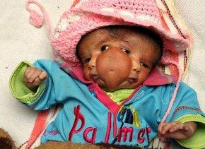 印度双面婴儿