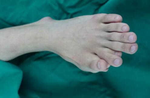 一足生9趾!21岁男子单脚竟长9根脚趾